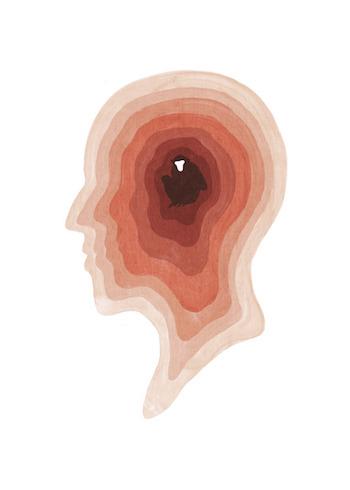 ape-brain
